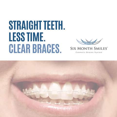 Can Six Month Smiles Really Straighten My Smile Fast?